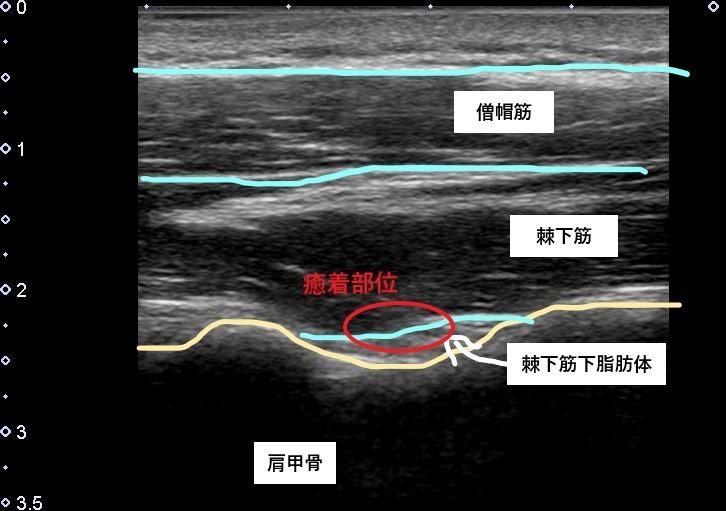 棘下筋と肩甲骨の間にある脂肪体の癒着