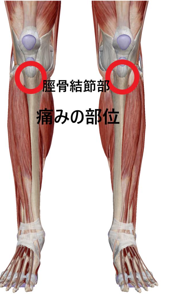 脛骨結節部の痛みの部位